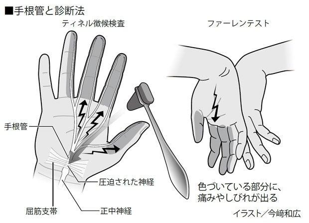 これ 症候群 痛み 管 シビレ が 消え た 手 根 で