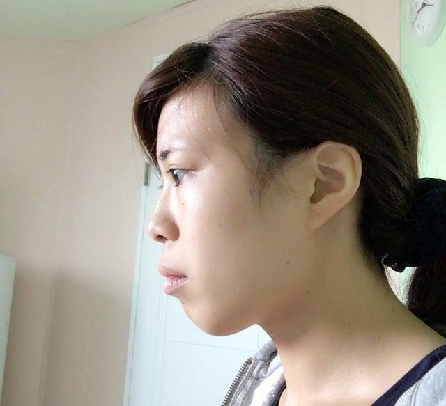 2回目の整形をする前の横顔(提供写真)