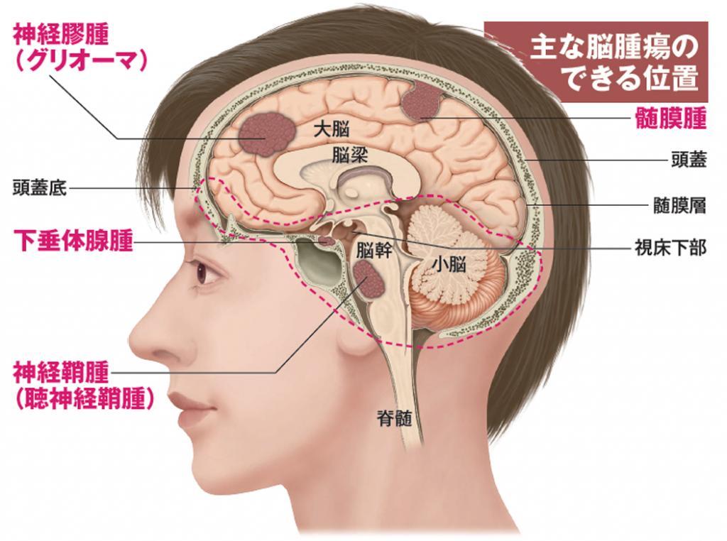 関ジャニ∞安田が脳腫瘍の一種「髄膜腫」摘出 予防は困難で視力や聴力に影響も (1/2) 〈週刊朝日〉|AERA dot. (アエラドット)