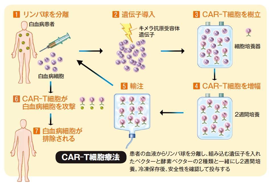 白血病 治療: 急性リンパ性白血病に新たな治療法が登場 がん細胞だけを攻撃
