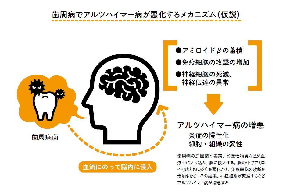 歯周病と「脳」の関係 最新研究で解明