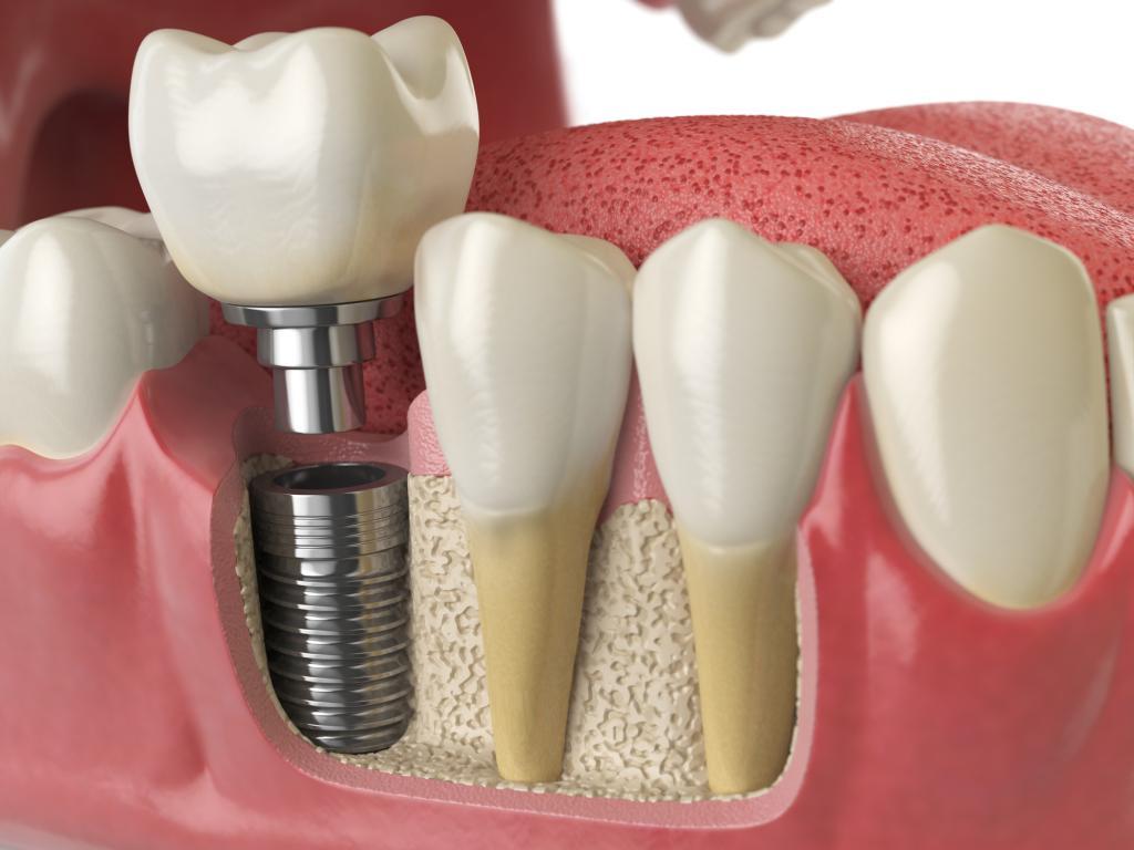 写真・図版 | 歯周病の人が「イ...