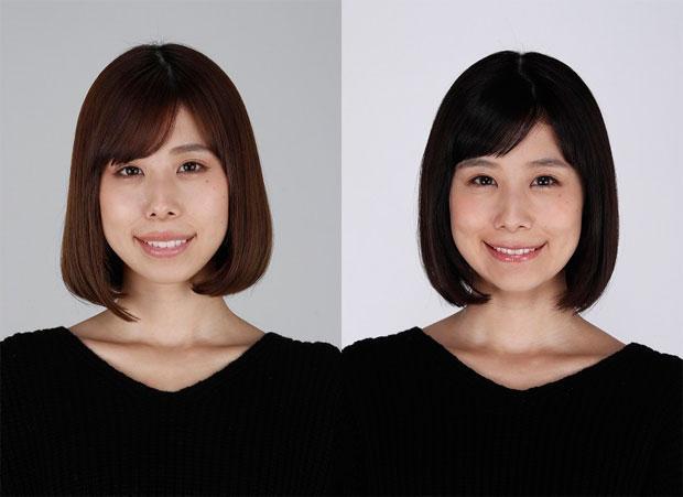 有村藍里さんの整形前(左)と整形後(レグノクリニック提供)